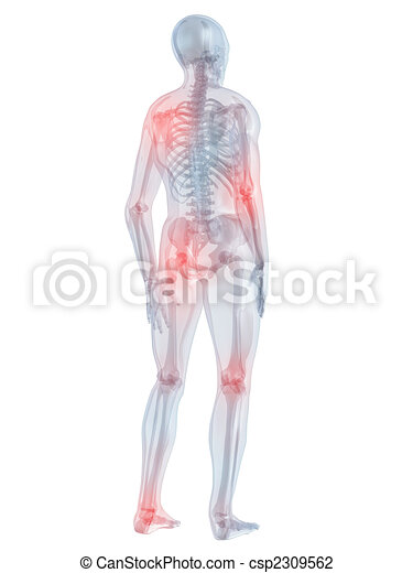 painful joints - csp2309562