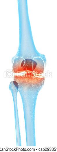 Painful knee - csp29335126