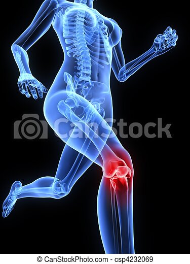painful knee joint - csp4232069