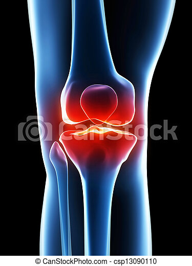 painful knee - csp13090110