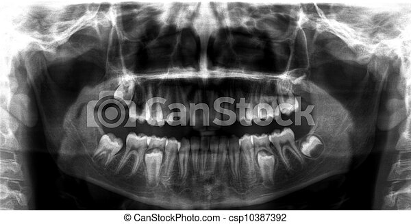 Radiografía dental panorámica - csp10387392