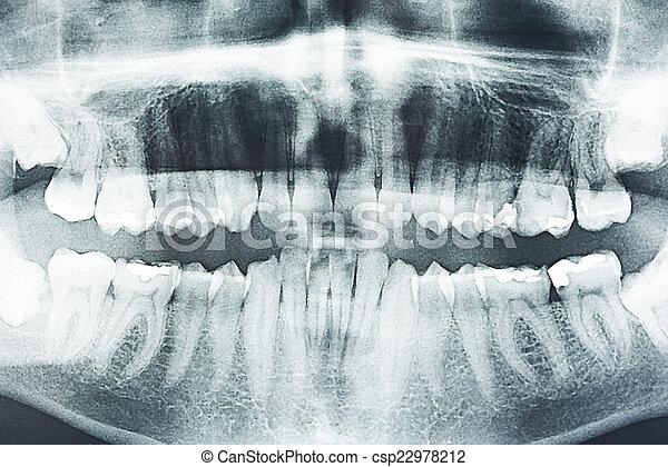Radiografía dental panorámica - csp22978212