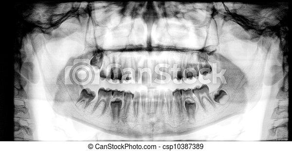 Panoramic dental X-Ray - csp10387389
