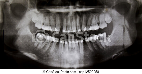Panoramic dental X-Ray - csp12500258