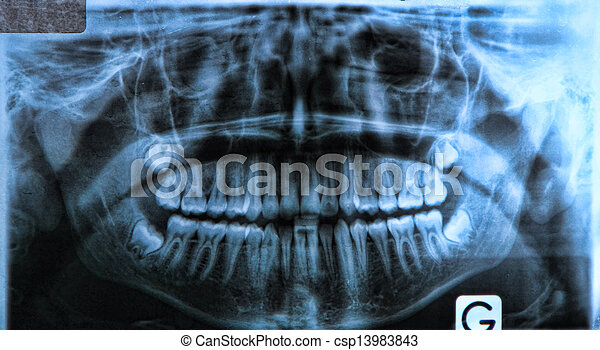 panoramic dental x-ray - csp13983843