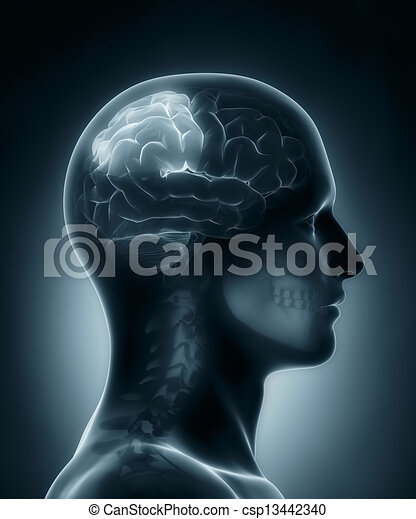 Parietal lobe medical x-ray scan - csp13442340