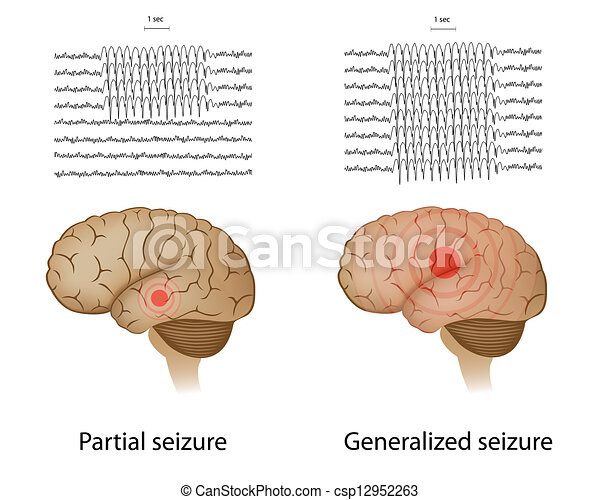 Partial and generalized epilepsy - csp12952263