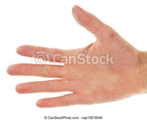 paume, eczéma, dermite, doigts, main - csp13618040