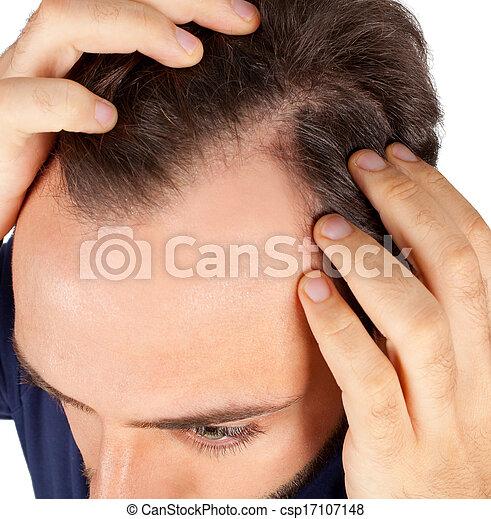 perda cabelo, controles, homem - csp17107148