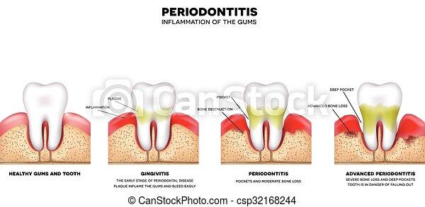 periodontitis - csp32168244