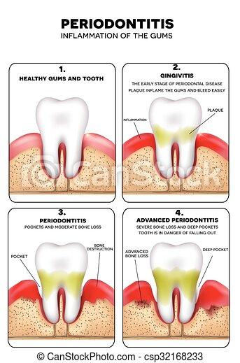 periodontitis - csp32168233