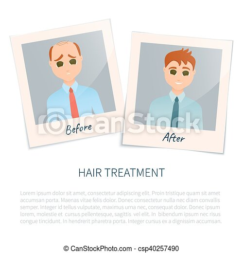 photographies, après, cheveux, traitement, homme, avant - csp40257490
