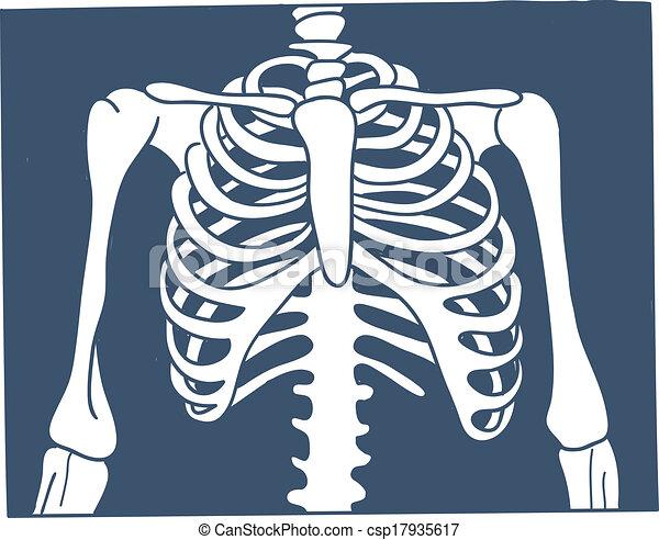 Foto de rayos X de Thorax. - csp17935617