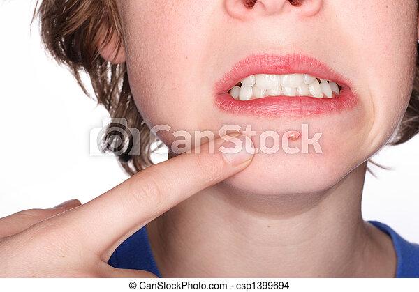 Pimple - csp1399694