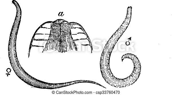 Milyen tünetei vannak a pinwormsnek gyermekeknél rossz lehelet 16 éves