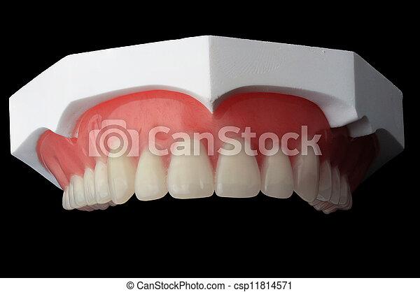 Dentadura completa, placa dental de fondo negro - csp11814571
