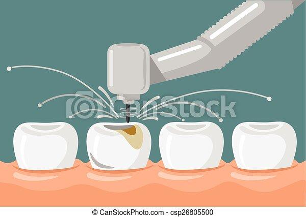 Ilustración dental vectora plana - csp26805500