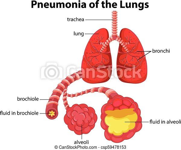 pneumonia of the lungs diagram illustration