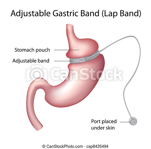 poids, gastrique, bande, chirurgie, perte - csp8435494