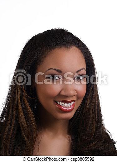 Portrait young black woman orthodontist braces - csp3805592