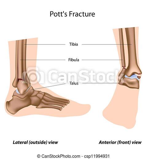 Pott's fracture, eps8 - csp11994931