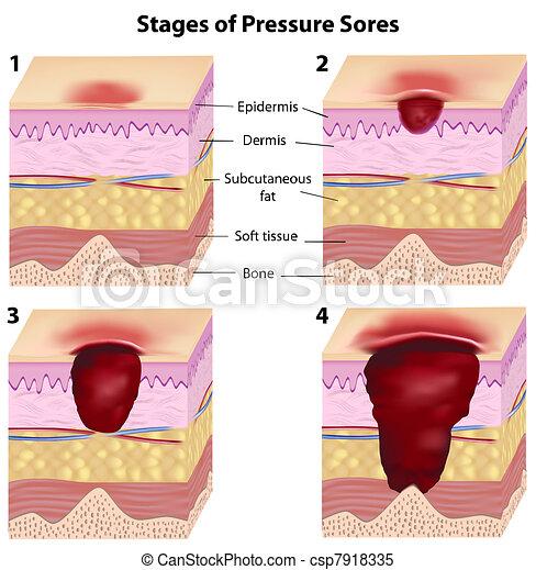 pression, étapes, sores, eps8 - csp7918335