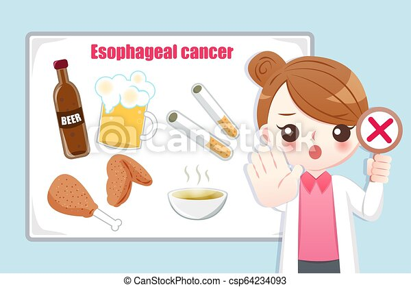 Prevention esophageal cancer - csp64234093