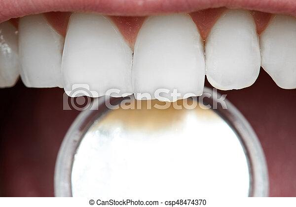 Primer plano, dientes humanos. Tool., primer plano, humano, dental ...