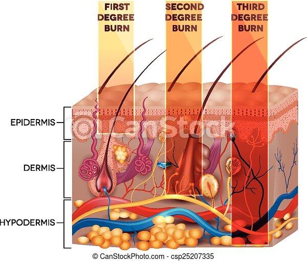 Clasificación de quemaduras de piel. Quemaduras de piel de segundo y tercer grado - csp25207335