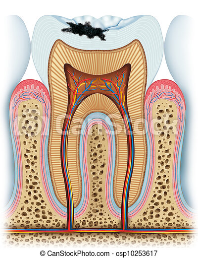 Principle of a cavity. Anatomy of a tooth with the principle of a ...