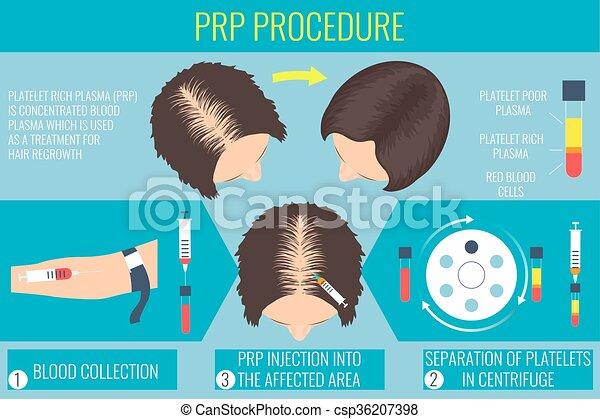 procédure, riche, plaquette, plasma, femme - csp36207398
