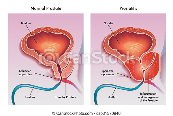 Prostatitis csintalan)