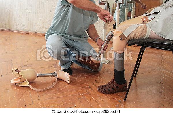 prothèse - csp26255371