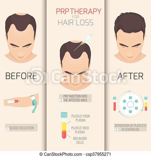 prp, perda, cabelo, terapia - csp37955271