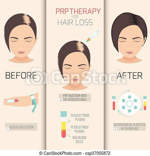 prp, perte, cheveux, thérapie - csp37055872