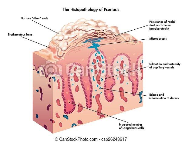 psoriasis - csp26243617