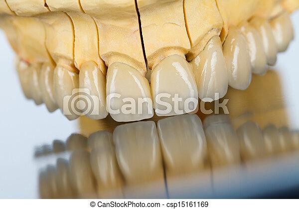 puente, dental, cerámico, -, dientes - csp15161169