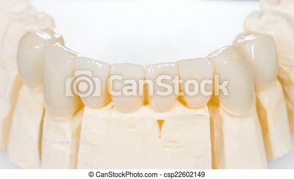 Puente de cerámica dental - csp22602149