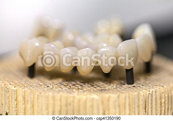 Puente de cerámica dental - csp41350190