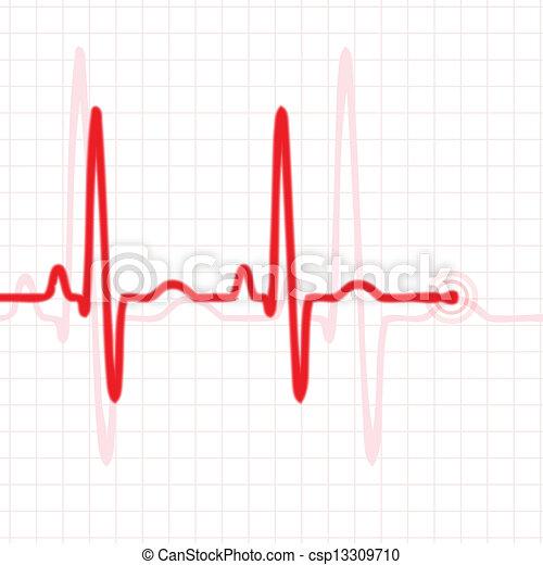 Pulso rojo - csp13309710