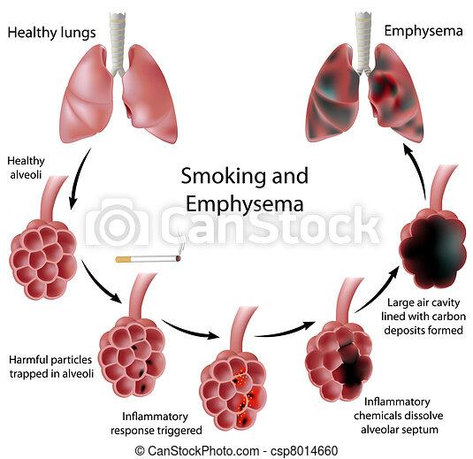 Rauchen und Emphysem, Eps 8 - csp8014660