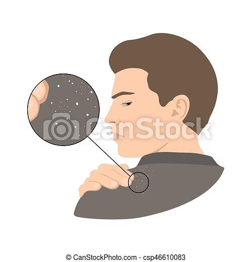 question, s, shoulder., dandruff, homme - csp46610083