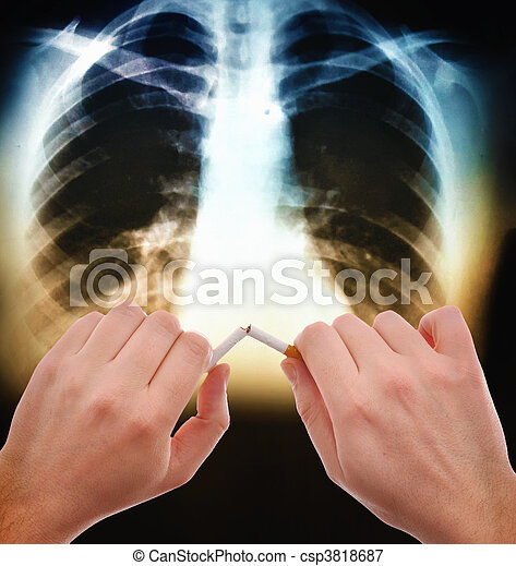 Quit smoking - csp3818687
