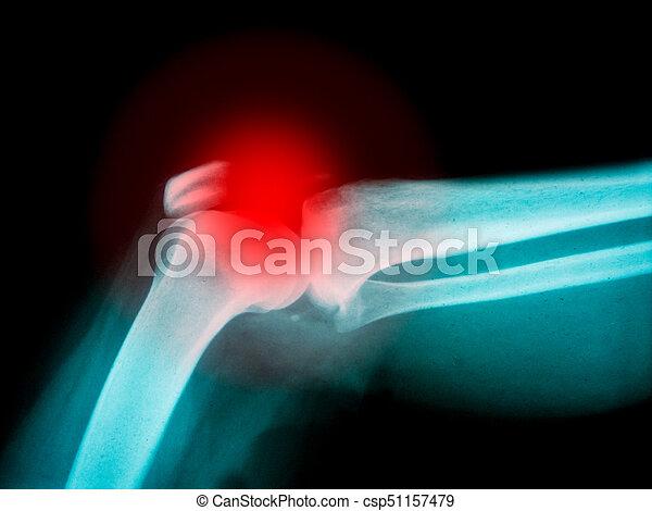 Röntgenaufnahme, gebrochener arm, knochen, höhepunkt. Ausstellung ...