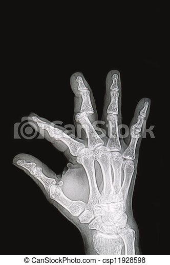 Röntgenbilder, weisen, bild, hand, handgelenk, knochenbrüche ...