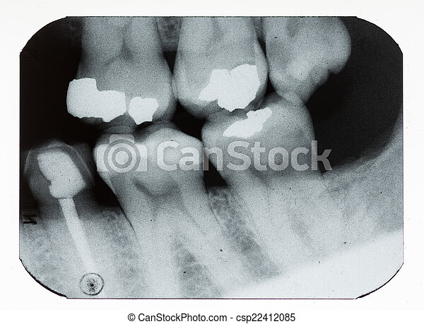Rayos X dentales - csp22412085