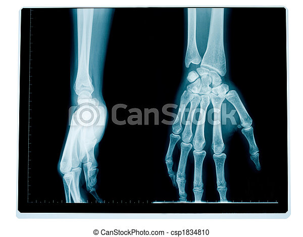 Radiografía, muñeca, mano. Mujer, mano, medio, muñeca, frente, viejo ...