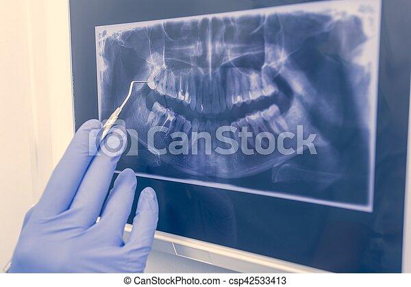 Radiografía dental panorámica - csp42533413