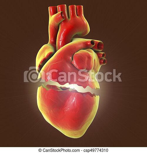 Realistic Broken Heart Separation And Divorce Concept