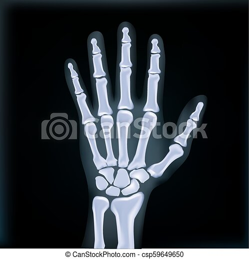 Realistic X Ray Hand Medical Image Eps10 Vector
